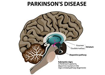 Dealing with Parkinson's in our Tuscaloosa Assisted Living Community